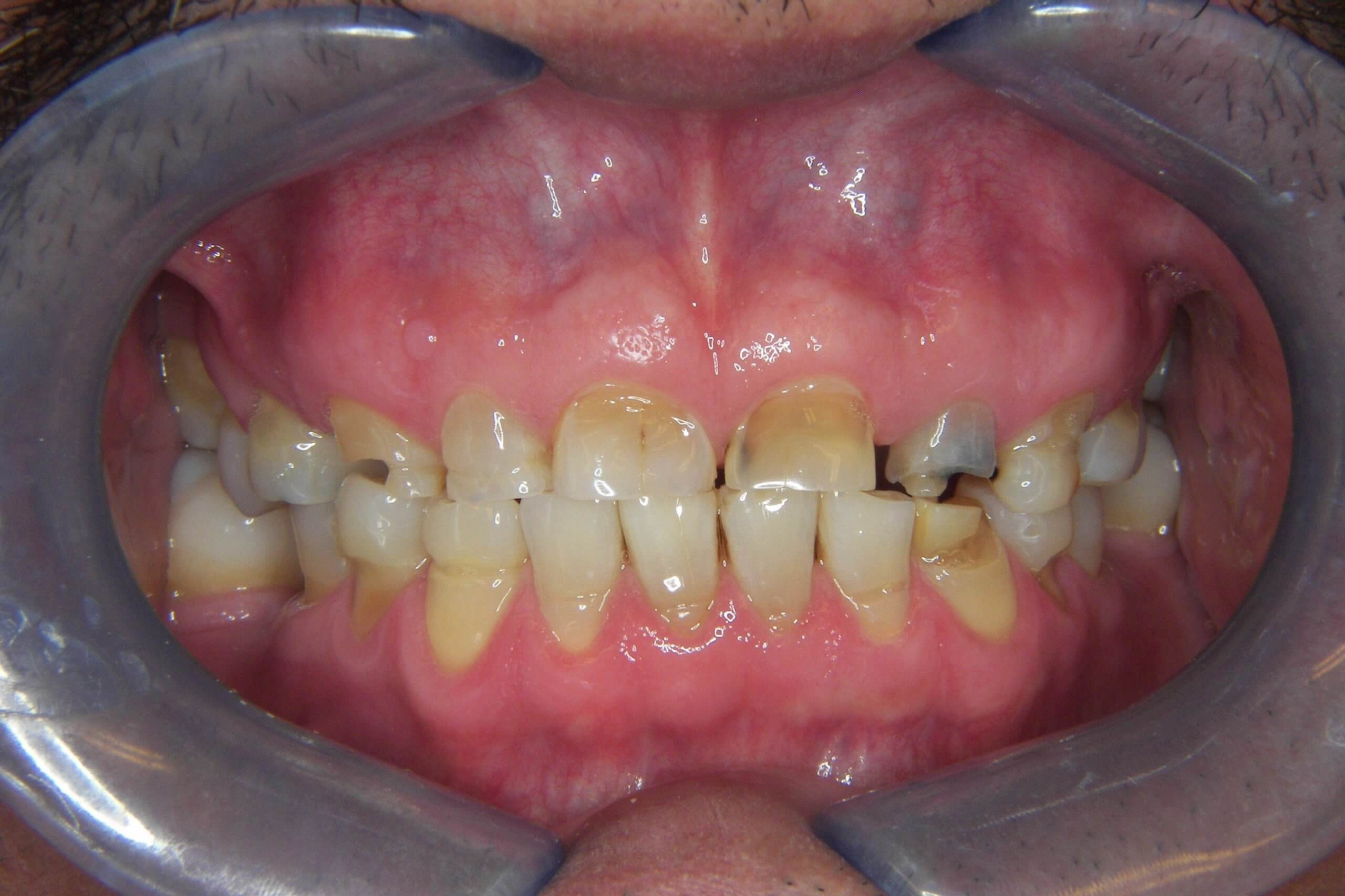 patients teeth before